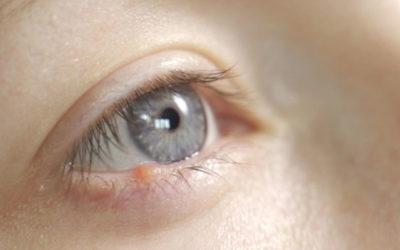 Gerstenkorn: Tipps zur Vorbeugung, Behandlung und wann sollte man zum Arzt?